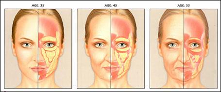 Dermal Fillers – MacQuaid Eye Institute - Emily MacQuaid, MD, FACS